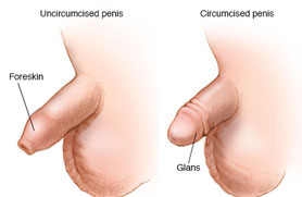 Circumcision in Babies & Adults